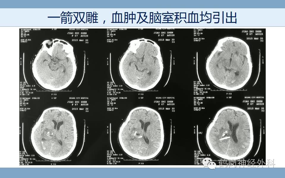 激光辅助脑出血钻孔引流术