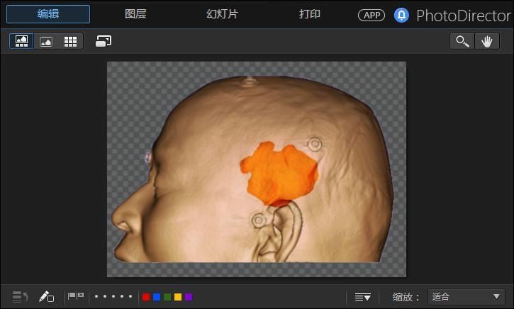 3D Slicer教程【颅内病变体表定位】