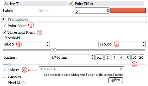 3D Slicer教程之血肿建模(二)