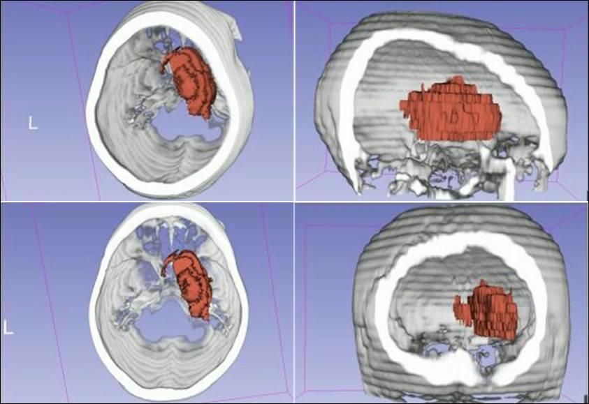 自制鞘管在基底节血肿清除术中的应用