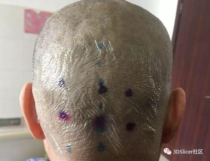3DSlicer实战之浅表肿瘤定位