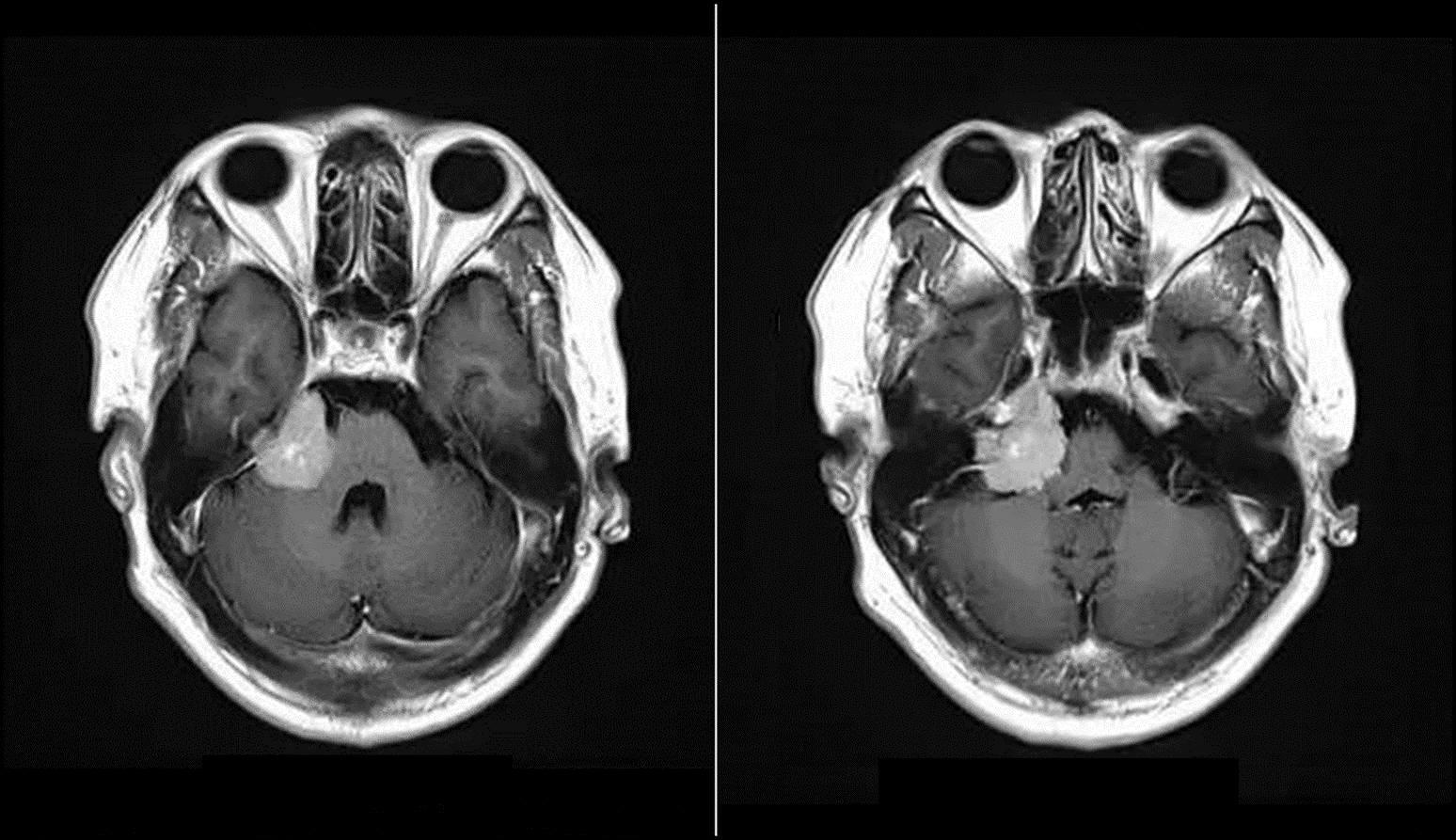 3Dslicer模拟手术入路之CPA肿瘤