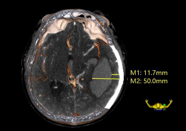 3DSlicer在破裂大脑后动脉远端动脉瘤手术策略中的应用