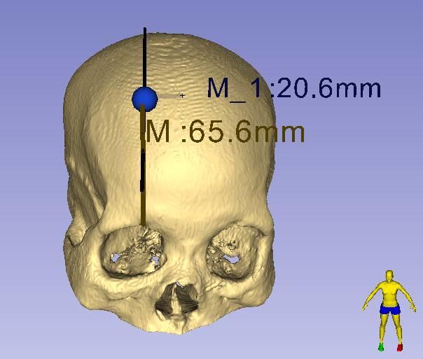 3D Slicer在脑出血神经内镜手术中的应用