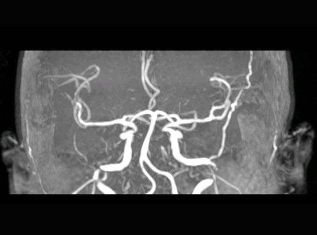 3D Slicer临床应用之窦旁脑膜瘤