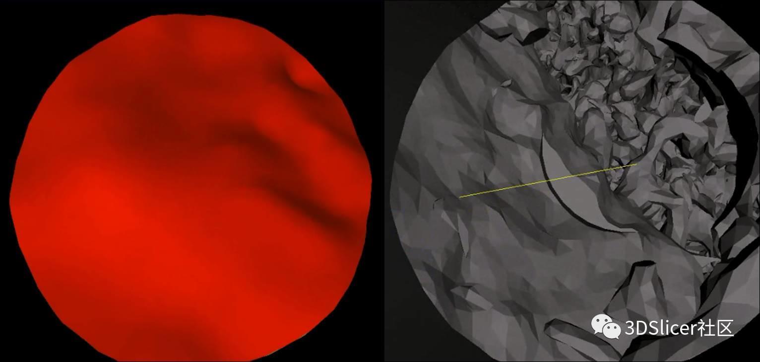 3Dslicer虚拟内镜在脑出血清除术演练中的应用
