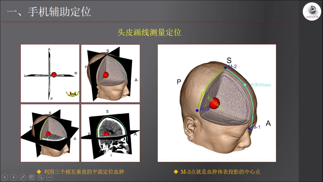 手机App辅助颅内幕上病变的定位方法(进化版)