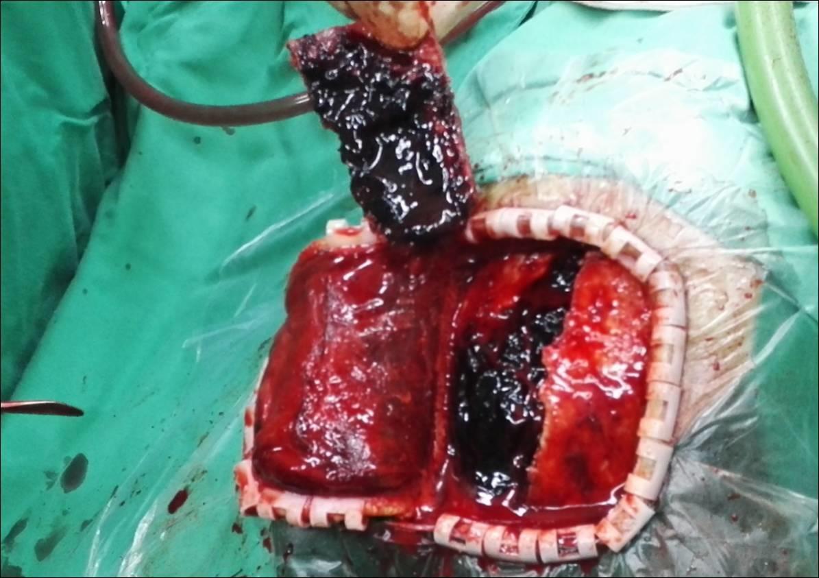 3DSlicer硬膜外血肿术前计划