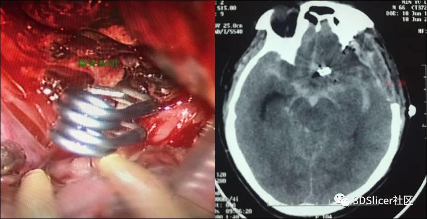 3D Slicer联合神经电生理监测在前交通动脉瘤夹闭术中的应用