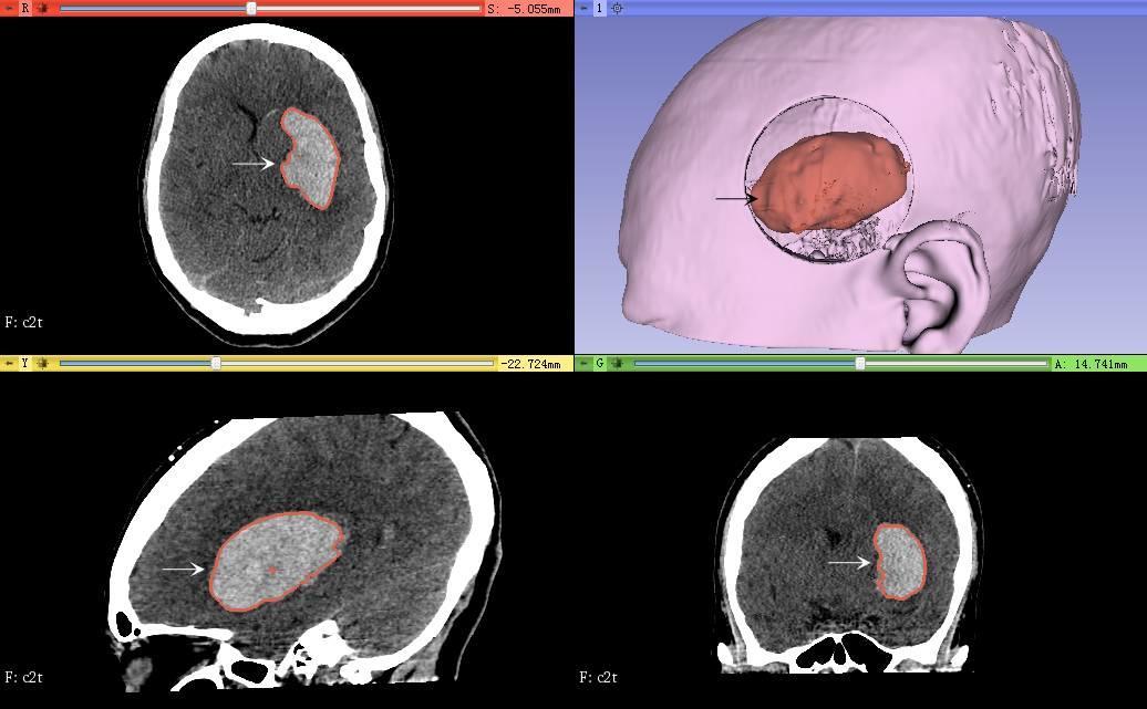 运用3D slicer 对1例立体定向左侧基底节血肿抽吸手术的效果评价