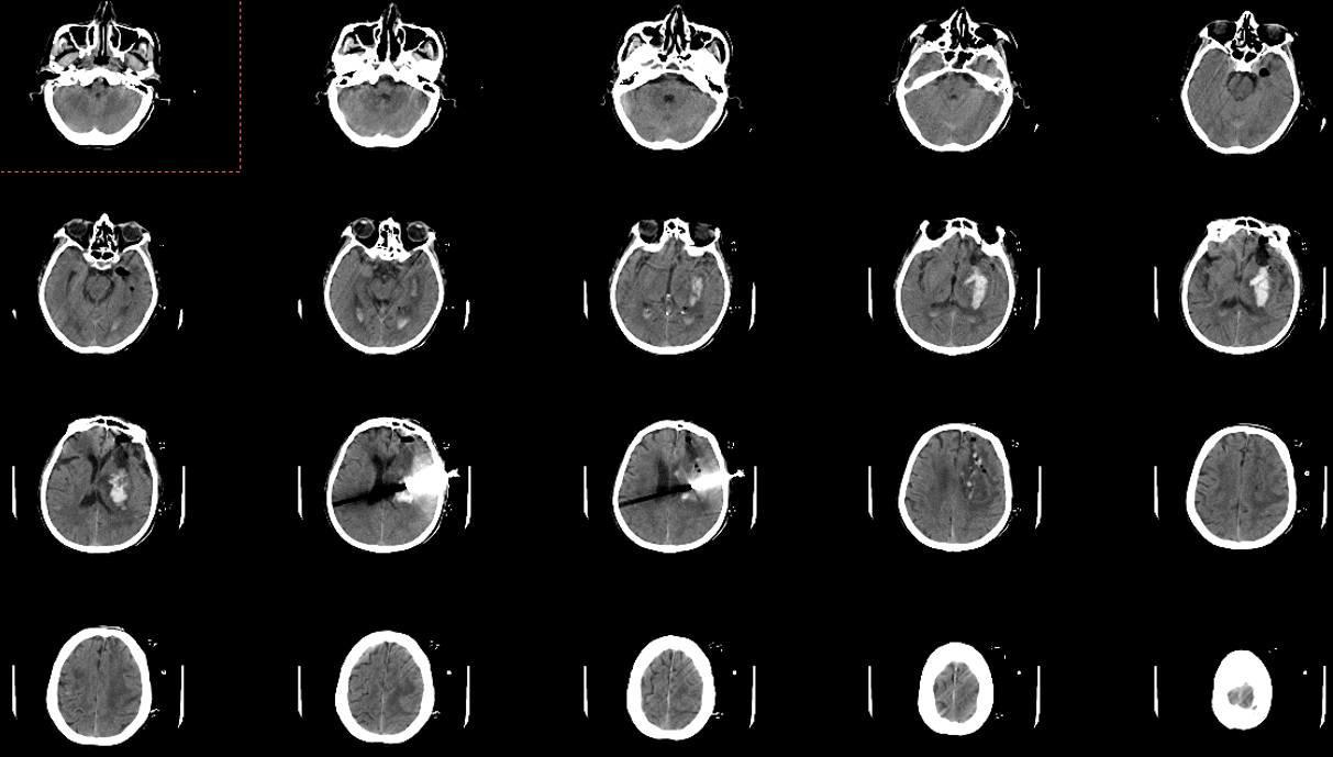 3D Slicer 增强现实体表投影在脑出血穿刺引流中的应用