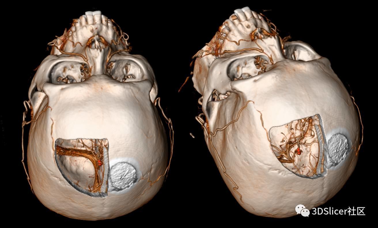 大脑前动脉远端动脉瘤手术夹闭治疗(一)