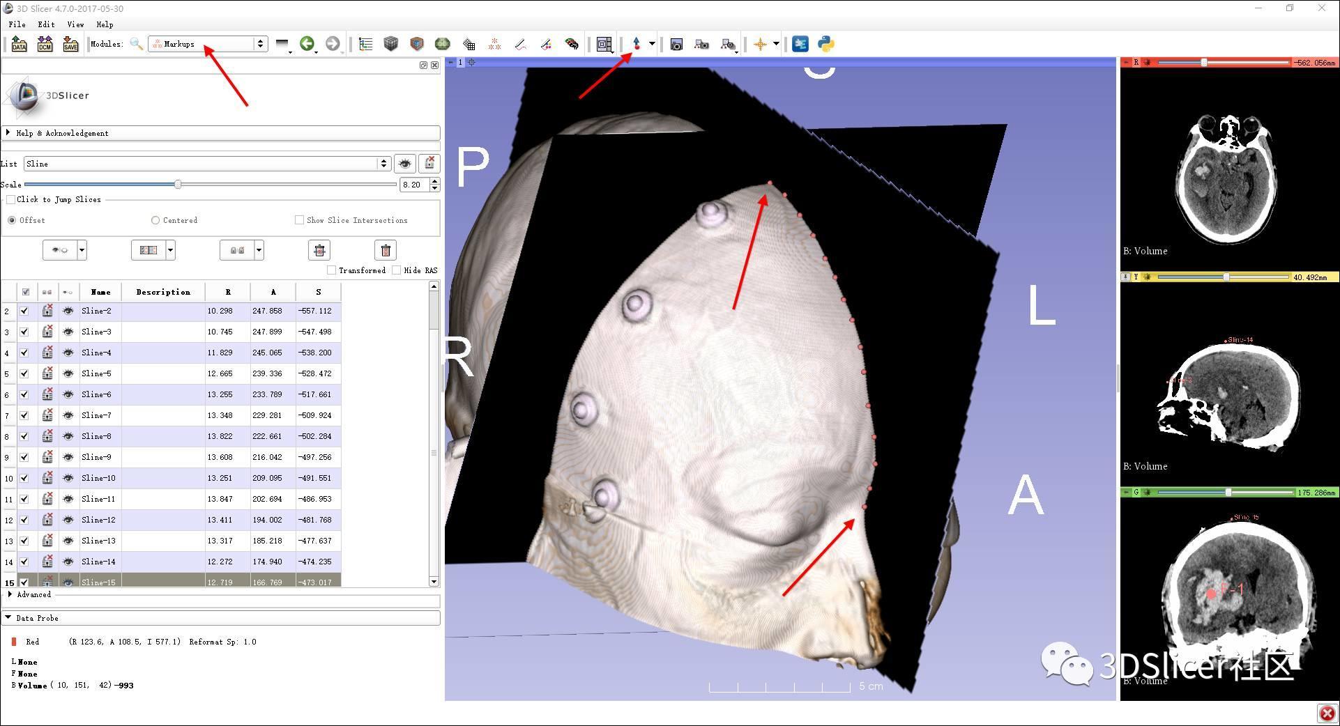 体表曲线的测量——Curve Maker模块教程
