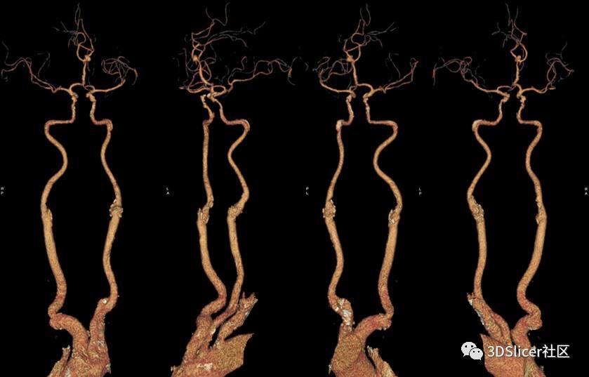 大脑前动脉远端动脉瘤手术夹闭治疗(二)