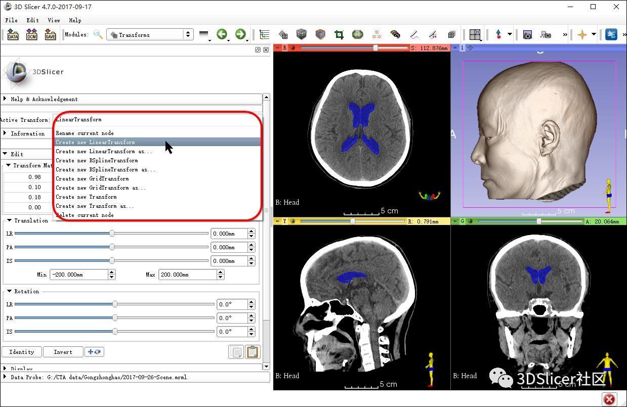 3D Slicer转换坐标法显示颅内病变体表投影