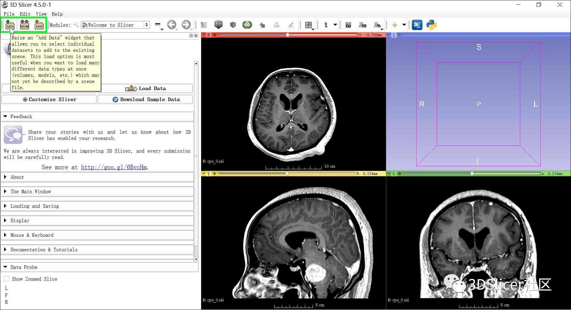 利用3D Slicer自动剥离CT或MRI影像上的头皮和颅骨