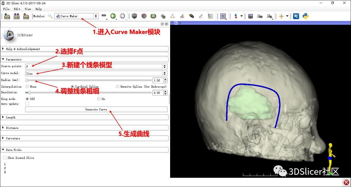 用3DSlicer开脑洞— 切口及骨窗设计