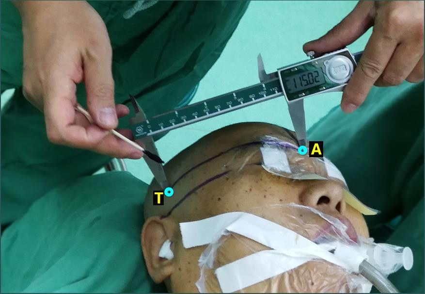 脑出血经额手术定位法(一)