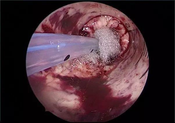脑出血经额手术定位法(二)