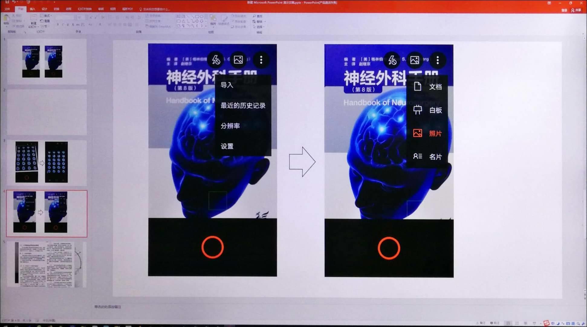 应用Office Lens软件采集CT胶片影像