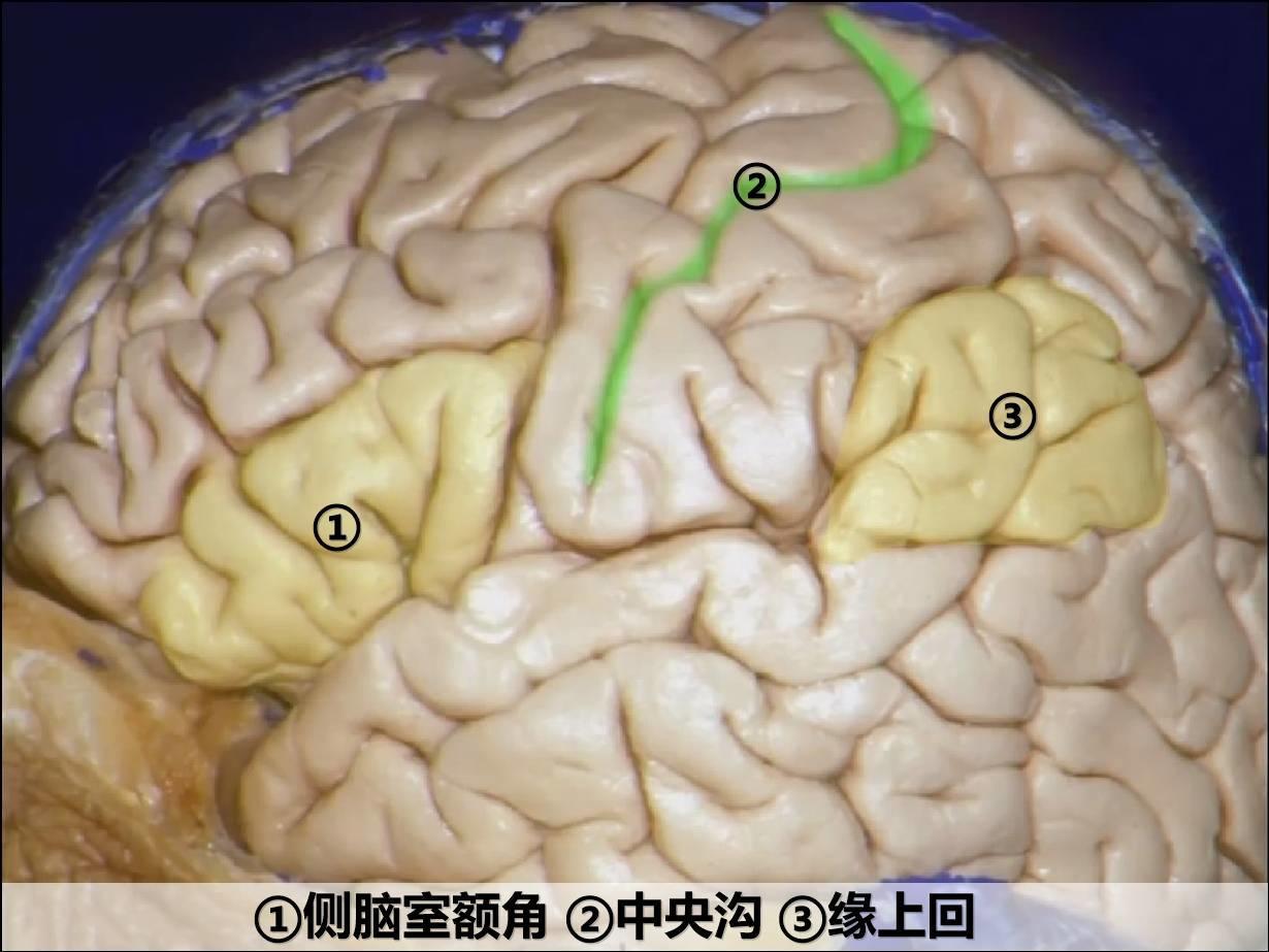 脑室系统解剖(一)