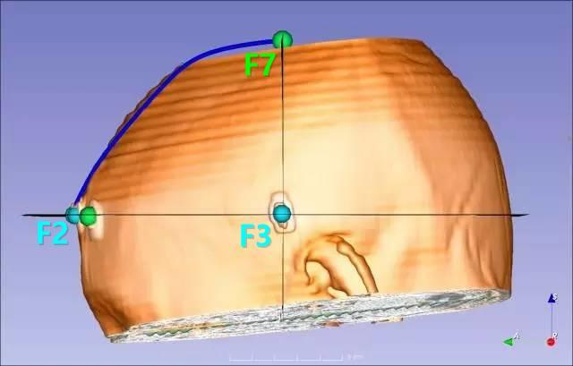 脑出血经额手术定位法(三)