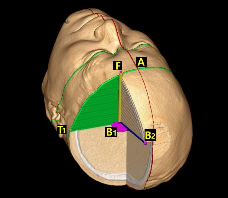 脑出血经额手术定位法(四)