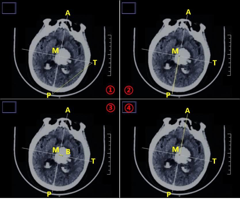 Image J在脑出血穿刺定位中的应用