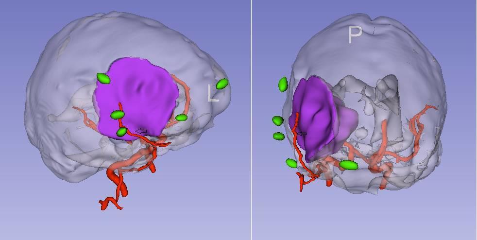 脑膜瘤患者颅骨切除一期修补的3DSlicer方案