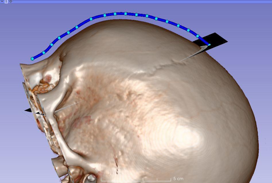 3D Slicer中的测量工具