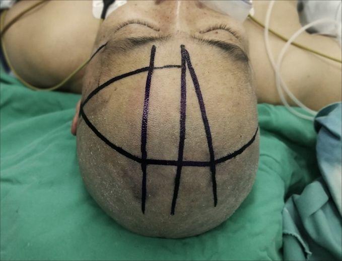 手术用头架在脑出血穿刺引流术中的应用