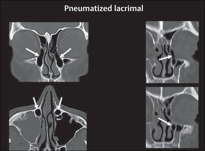 鼻腔、鼻窦及颅底相关解剖CT影像概要