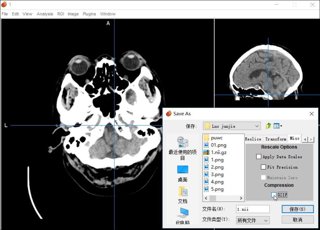 校正3Dslicer畸变图像的直观方法