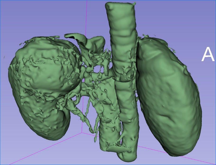 3D Slicer在肾肿瘤中的应用