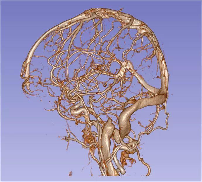 一招鉴别动脉瘤还是动脉壶腹样扩张