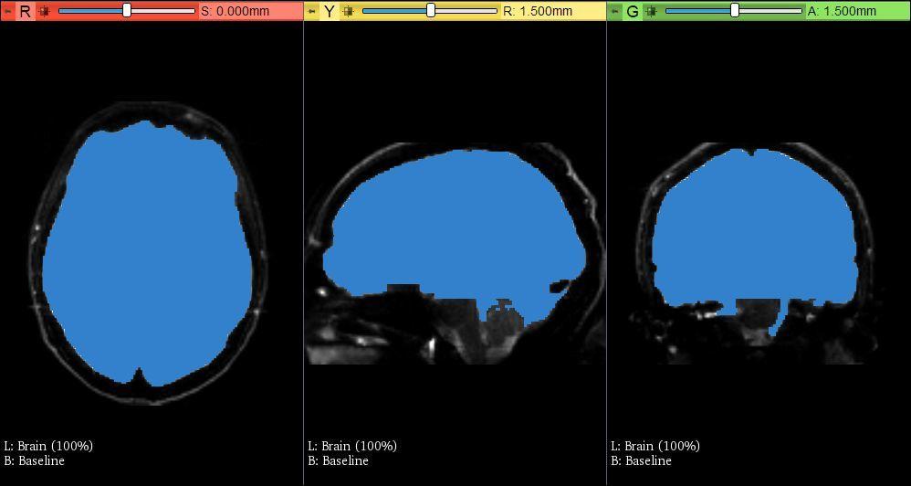 DTI教程06-大脑掩模(Brain Mask)