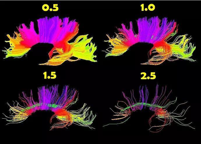 DTI教程12-纤维束成像的参数调节