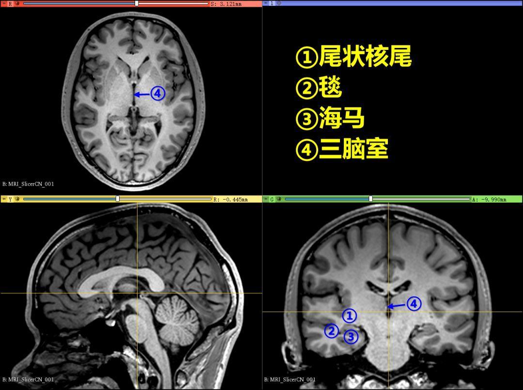脑室系统解剖(二)