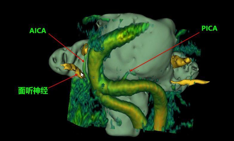 面肌痉挛(HFS)& 显微血管减压术(MVD)
