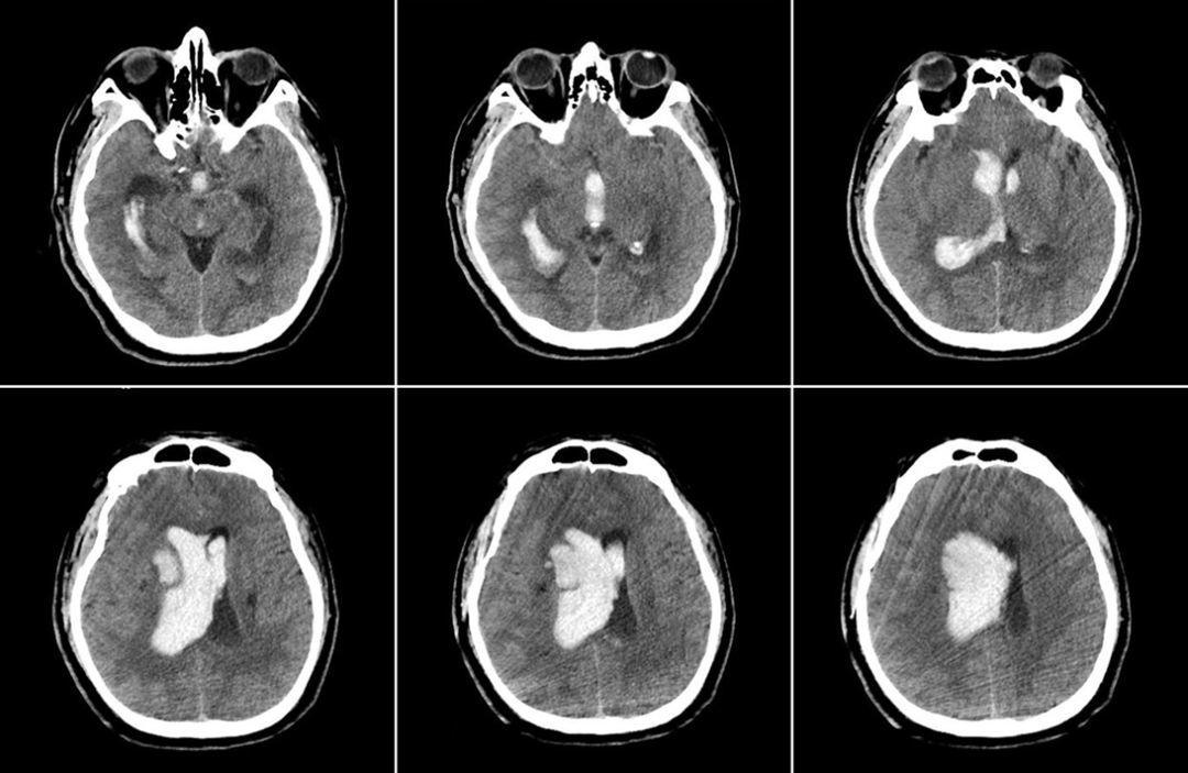 内镜辅助脑室血肿清除术