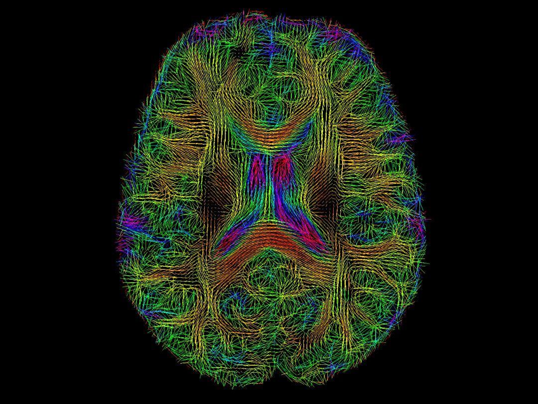 DTI教程09-弥散张量的可视化