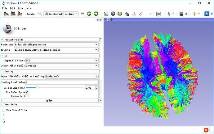 DTI教程10-大脑纤维束成像