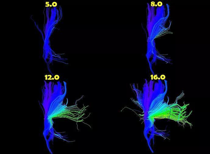 DTI教程13-皮质脊髓束纤维束成像