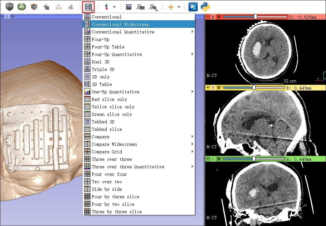 脑出血定位贴定位零基础之界面布局