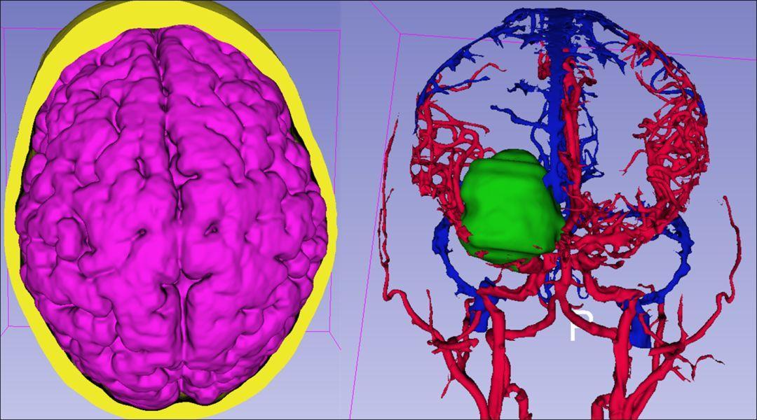 CTA重建动静脉