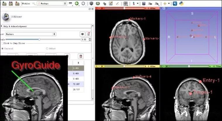 脑出血定位帖定位零基础之模块简介