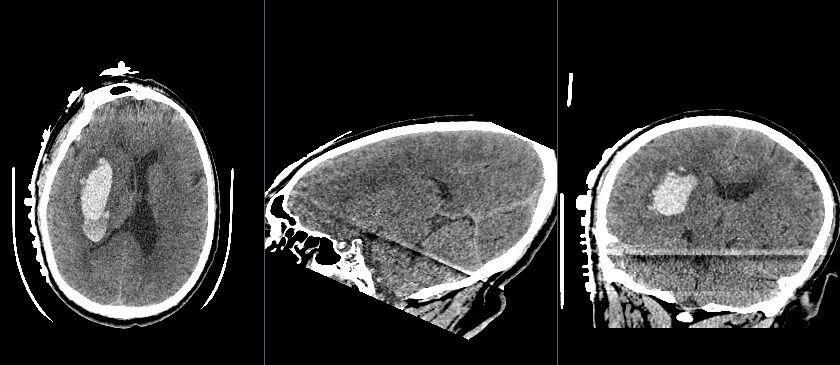 脑出血定位贴定位零基础之数据导入
