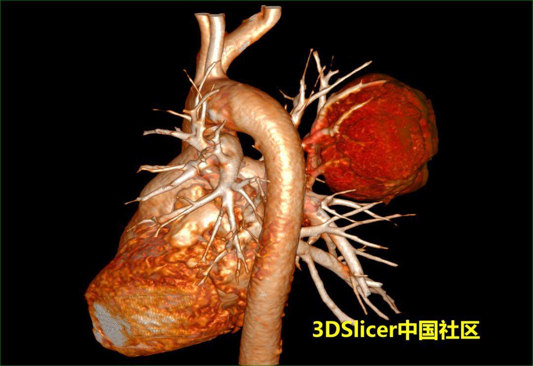 3D Slicer肺部影像三维重建及虚拟支气管镜