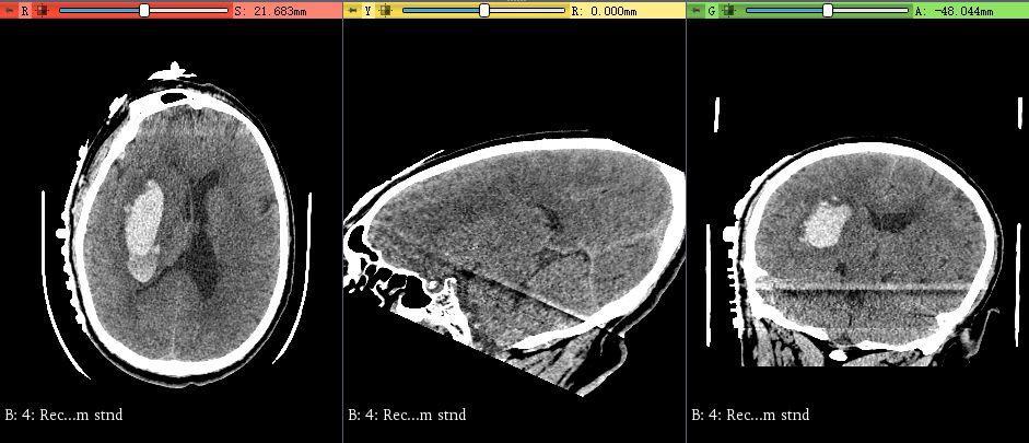 脑出血定位贴定位零基础之图像校正
