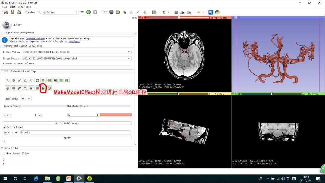 3DSlicer建模在MVD术前的应用